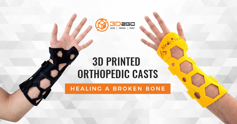 3D Printed Orthopedic Casts