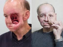 3d printed facial prosthetic