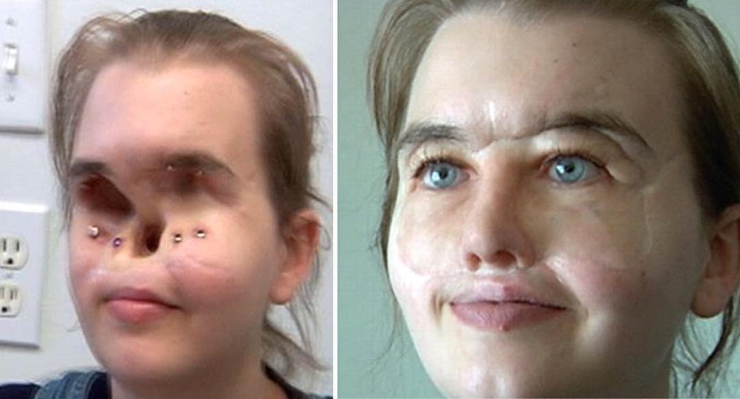 prosthetic face mask