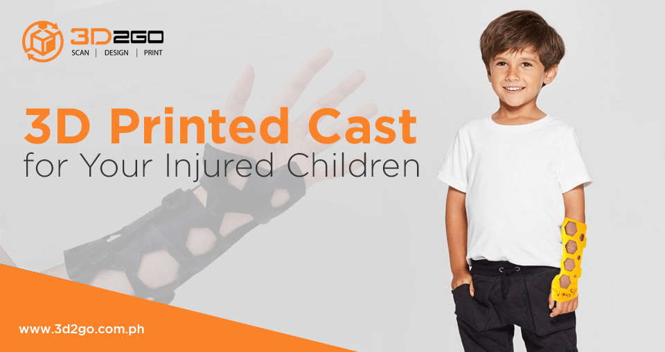 3D Printed Cast for Your Injured Children