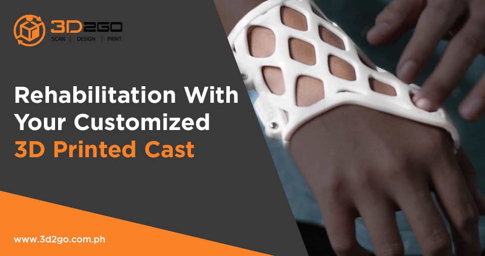 Rehabilitation With Your Customized 3D Printed Cast